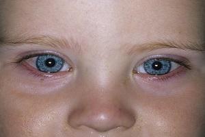 مشکلات بینایی نوزادان چه علایمی دارد