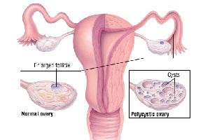 درمان سندروم تخمدان پلی کیستیک با روشی جدید
