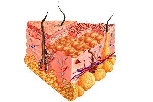 علت موهای زیر پوستی و چگونگی پیشگیری از موهای زیر پوستی