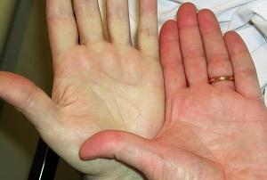 پیشگیری از کم خونی با چند توصیه