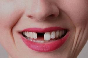 افتادن بی دلیل دندان ها از عوارض جدید کرونا