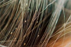 مناسب ترین راه درمانی برای شپش موی سر در کودکان