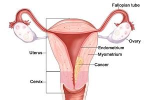 سرطان رحم و آنچه باید درمورد سرطان رحم بدانید