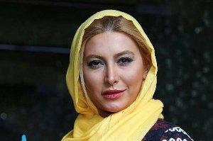 چهره متفاوت فریبا نادری قبل و بعد از جراحی زیبایی بینی!! عکس