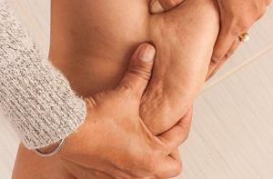 بهترین روش درمان سلولیت + علت سلولیت در خانم های لاغر