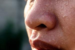 کاهش تعریق تابستانه و بوی بد عرق با روش های طبیعی