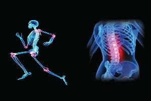 مشکلات استخوانی چه علائمی دارند؟