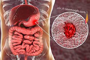 زخم معده Peptic ulcer چیست؟ برای زخم معده چی بخوریم؟