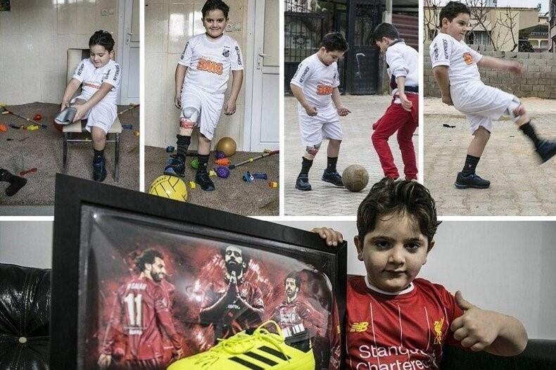 اقدام ارزشمند محمد صلاح برای کودک سوری که بخاطر مین پایش را از دست داد