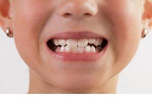 روش های خانگی برای جلوگیری از کج در آمدن دندان کودکان