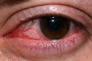 قرمزی چشم را چگونه برطرف کنیم؟